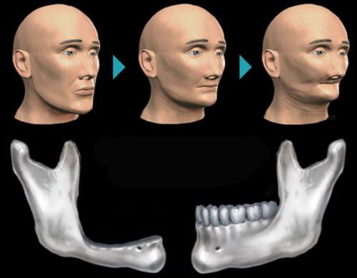 Cơ chế tiêu xương ổ răng 1