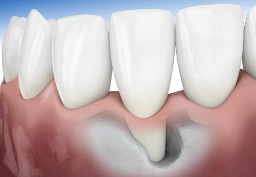 Điều trị tiêu xương hàm 1