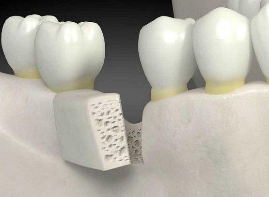 Tiêu xương răng có sao không 1
