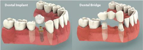 Những trường hợp nào nên trồng răng Implant là tốt nhất? 1