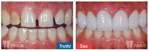 Tìm kiếm địa chỉ chụp răng sứ ở đâu TỐT và UY TÍN tại Hà Nội? 1