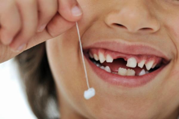 Nguyên nhân và cách khắc phục khi gãy răng sữa ở trẻ em 1