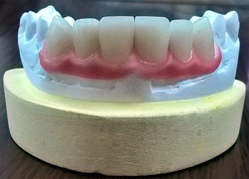Làm răng hàm bằng răng sứ kim loại có tốt không? Chuyên gia tư vấn 12