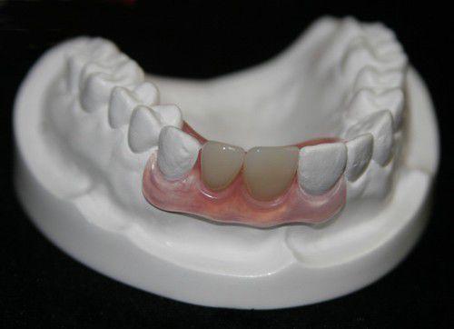 Có nên trồng răng sứ không 1