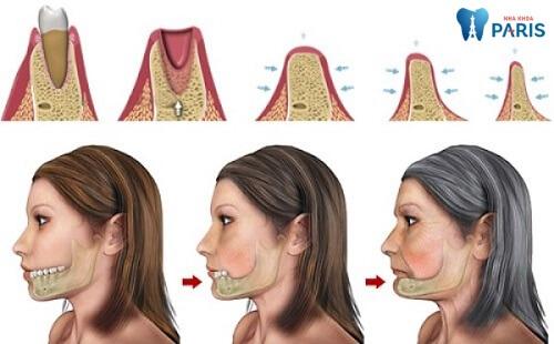 Bị gãy răng hàm có thể dẫn đến tiêu xương, ảnh hưởng thẩm mỹ nghiêm trọng