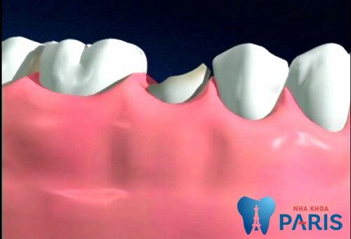 Bị gãy răng hàm có thể xuất phát từ nhiều nguyên nhân