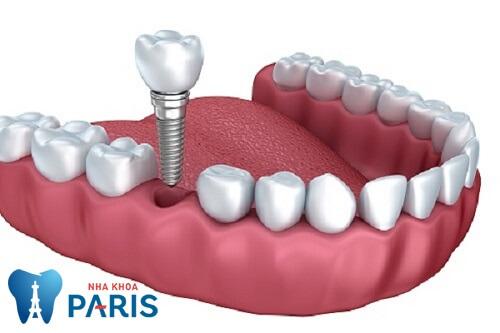 Trồng răng Implant là phương pháp tốt nhất khi bị gãy răng hàm