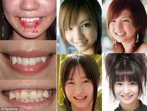 Đắp răng giả bằng composite có ưu và nhược điểm gì? Tư vấn 2