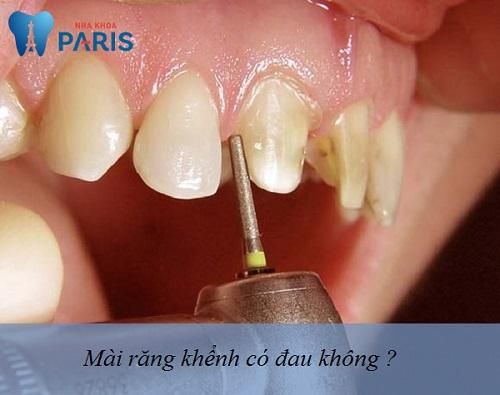 Giải pháp Chấm Dứt Ê Buốt 100% sau khi mài răng khểnh 4