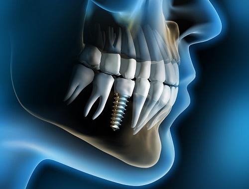 Làm sao để biết Implant là gì? Với cả răng implant có bền không? 1