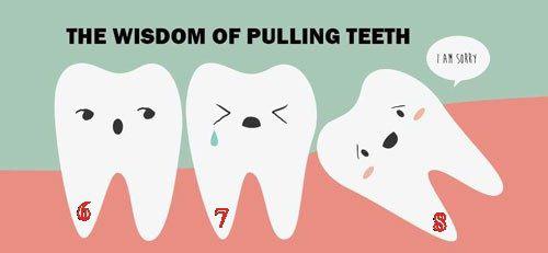 Răng hàm số 6 tại sao lại gọi là răng cấm? Cấm kỵ khi nhổ răng số 6 1