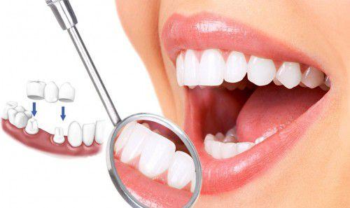 Bảng giá trồng răng giả hết bao nhiêu tiền? [Bảng giá ưu đãi 2017] 4