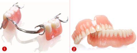 Hàm răng giả tháo lắp và các thông tin hữu ích bạn cần biết 2
