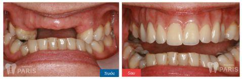 Hàm răng giả tháo lắp và các thông tin hữu ích bạn cần biết 6