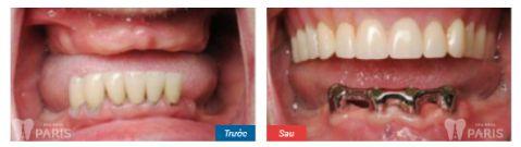 Hàm răng giả tháo lắp và các thông tin hữu ích bạn cần biết 5