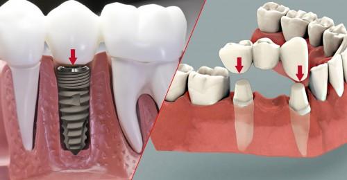 Làm răng giả cần có chi phí là bao nhiêu để trồng răng vĩnh viễn 1