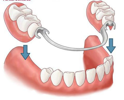 Trồng răng giả cố định - Răng Giả tháo lắp Thẩm mỹ & độ bền cao 1