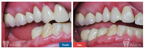 Chi phí trồng răng giả nguyên hàm bao nhiêu tiền? [Bảng giá 2017] 6