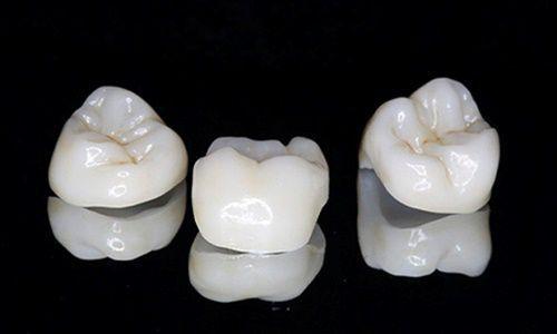 Chi phí trồng răng giả nguyên hàm bao nhiêu tiền? [Bảng giá 2017] 2