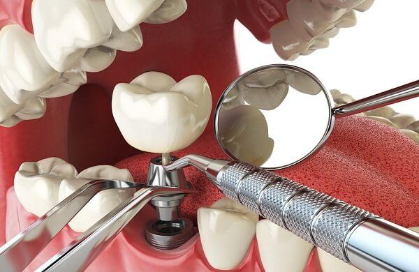 Nguyên nhân răng Implant bị lung lay - Cách khắc phục hiệu quả nhất! 1