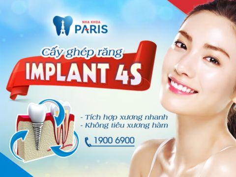 3 Nguyên nhân răng Implant bị lung lay và biện pháp khắc phục 2