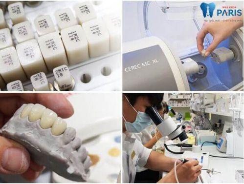 Quy trình chế tạo răng sứ tại Labo của Nha khoa Paris