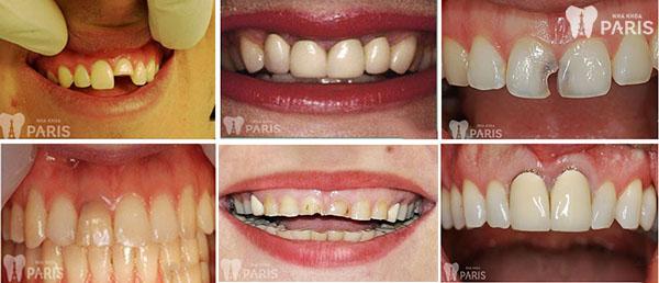 Răng sứ Titan là gì 2