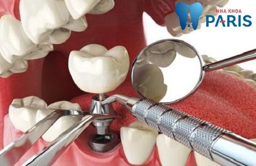 3 Nguyên nhân răng Implant bị lung lay và biện pháp khắc phục 3