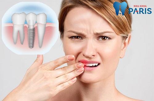 3 Nguyên nhân răng Implant bị lung lay và biện pháp khắc phục 5