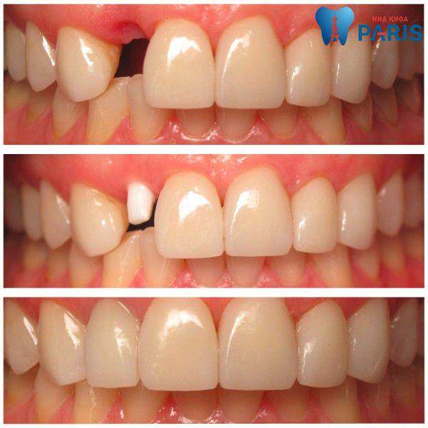 Cấy ghép implant - phục hình hoàn hảo cho răng mất