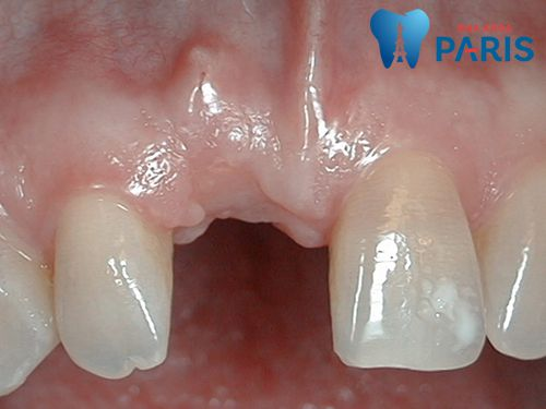 Cấy Ghép Implant và những trường hợp nào áp dụng hiệu quả nhất? 3