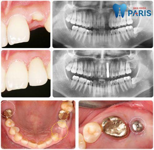 Cấy Ghép Implant và những trường hợp nào áp dụng hiệu quả nhất? 6