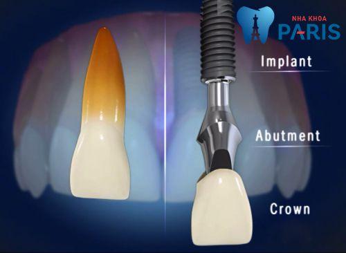 Cấu tạo của một răng implant so với răng thật