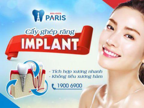 Cấy ghép răng implant tích hợp xương nhanh chóng