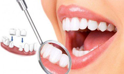 Cầu răng sứ có phải là phương án phù hợp