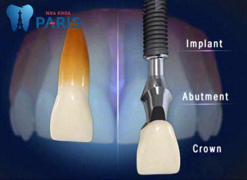 Bảng giá cấy ghép răng implant bao nhiêu tiền? [Giá MỚI nhất 2017] 2