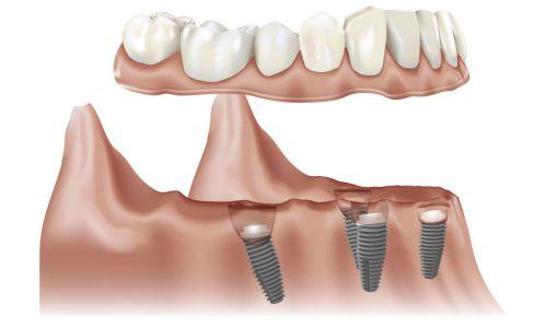 Trồng răng implant giá rẻ có đảm bảo hay không?
