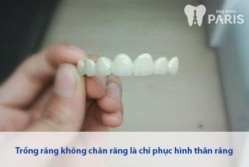 Giải pháp trồng răng không có chân răng như thế nào mới gọi là tốt 1