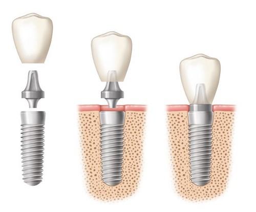 Giải pháp trồng răng không có chân răng như thế nào mới gọi là tốt 2