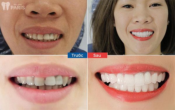 Địa chỉ chụp răng sứ uy tín giúp bạn đạt được kết quả phục hình cao nhất