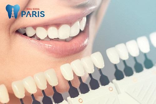 Vai trò của việc xác định chụp răng sứ ở đâu tốt