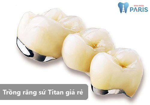 Hé lộ sự thật trồng răng sứ Titan giá rẻ có chất lượng không 1