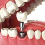 Cấy ghép răng implant có đau không & thời điểm trồng răng thích hợp nhất?