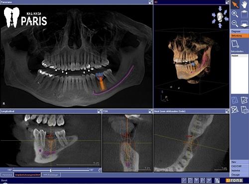 Trồng răng giả Implant mất bao lâu là Nhanh Nhất? [BS Tư Vấn] 2