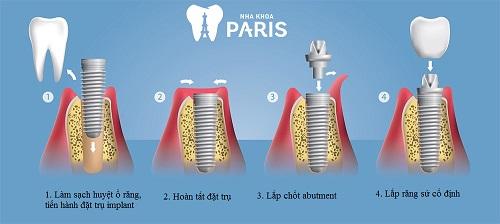 Trồng răng giả Implant mất bao lâu là Nhanh Nhất? [BS Tư Vấn] 3