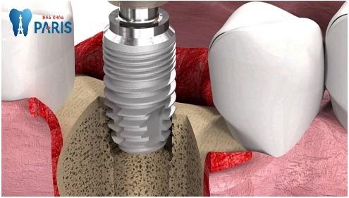 Trồng răng giả Implant mất bao lâu là Nhanh Nhất? [BS Tư Vấn] 4