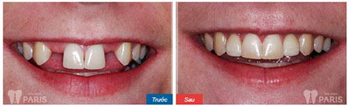 Trồng răng trong bao lâu với từng phương pháp cụ thể? 2