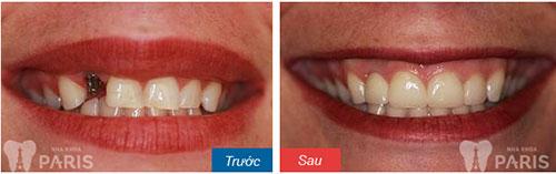Trồng răng trong bao lâu với từng phương pháp cụ thể? 3