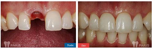 Trước và sau khi trồng răng implant 1