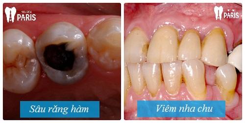 Lo lắng: Răng hàm lung lay có nên nhổ không ?